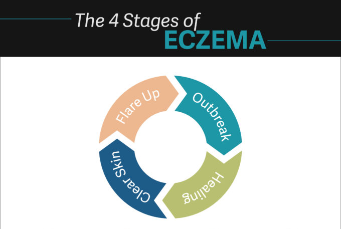 Eczema: The Autoimmune Disease Everyone Seems To Be Overlooking - Dr